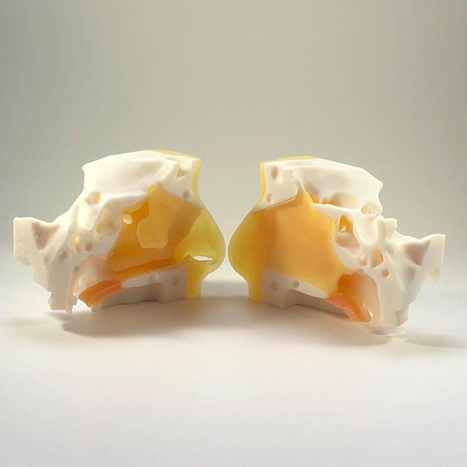 bone-3d-cung-cap-mo-hinh-dao-tao-swab-ma-nguon-mo-cho-covid19